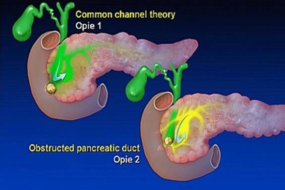 biliary pancreatitis mechanism