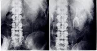 renal halo sign pancreatitis