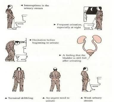 BPH symptoms