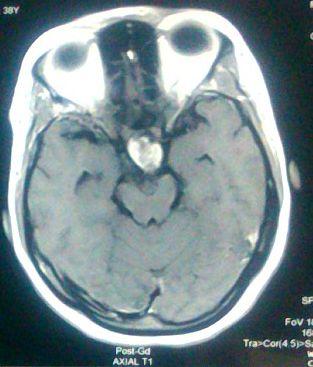 craniopharyngioma mri axial