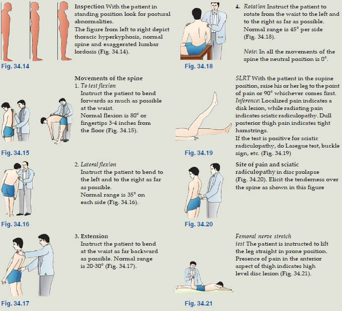 examination of back