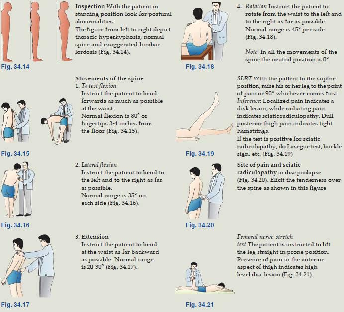 examination of back