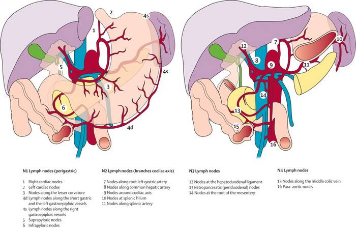 gastric lymph node stations