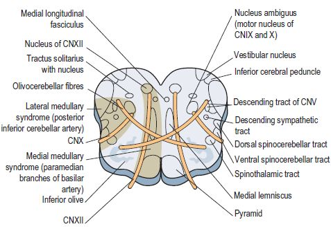 Anatomical basis of Wallenberg (Lateral Medullary) Syndrome ...