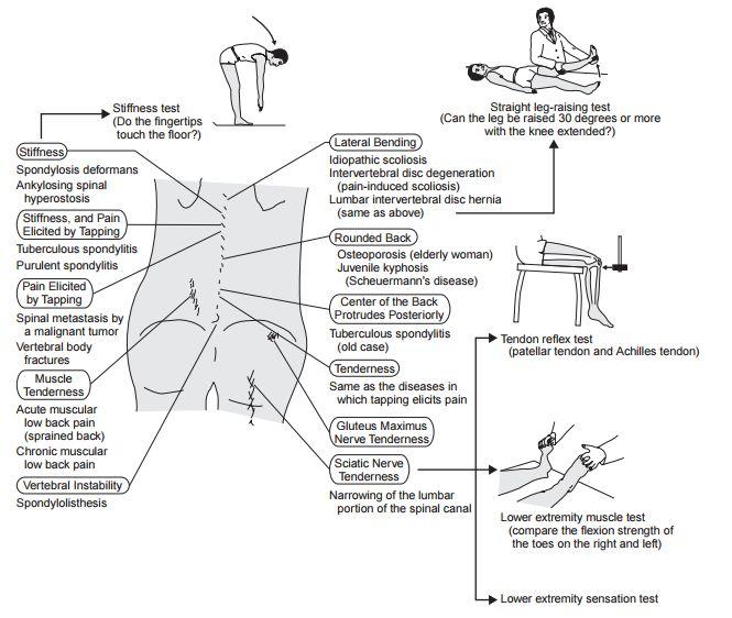 low back pain examination
