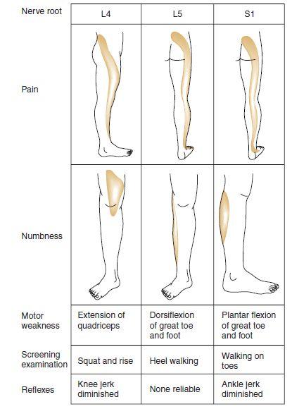 low back pain neurological examination