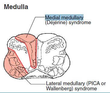 medial medullary syndrome