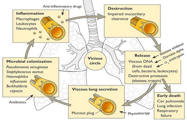 bronchiectasis pathogenesis