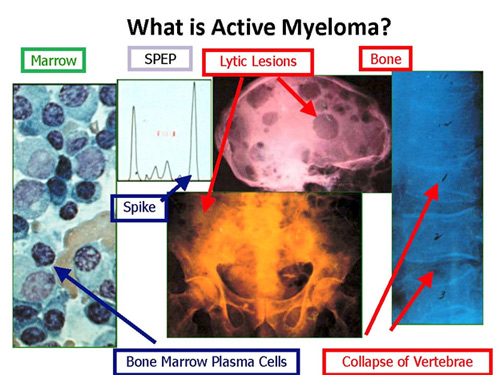multiple myeloma features