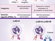 Leukocyte Adhesion Cascade and Defect