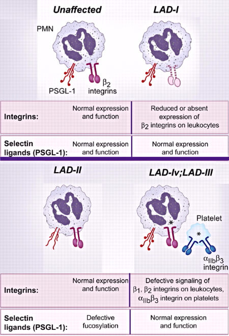 Leukocyte adhesion deficiency types