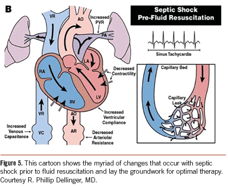 septic shock hemodynamic changes