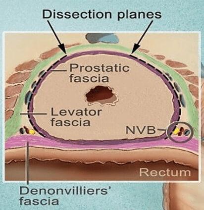 prostate neurovascular