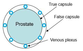 prostate capsules