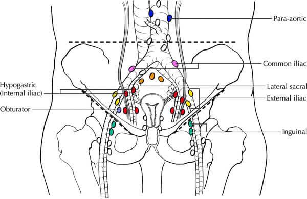 Tnm And Figo Staging Of Ovarian Carcinoma Simplified Epomedicine