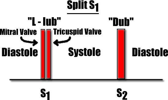 split S1