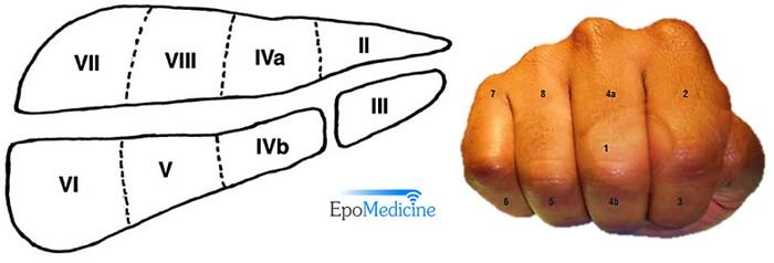 Liver Segments Explained With Mnemonic Epomedicine