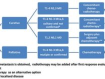 Extensive Small Cell Lung Cancer : Case Review