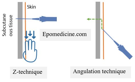 ascitic tapping needle insertion