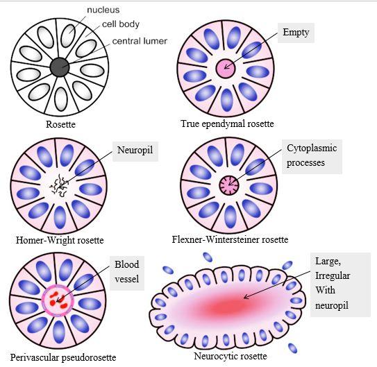 rosette types