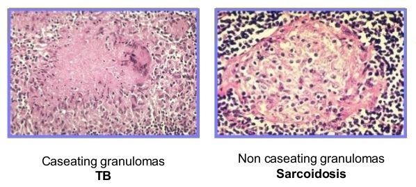 tb vs sarcoidosis