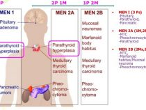 MEN syndrome Mnemonics