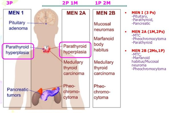 men syndrome