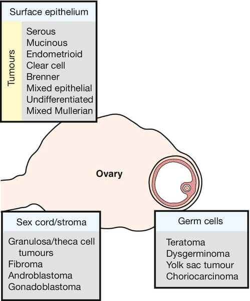 Pathology Of Ovarian Tumors Quick Review Epomedicine