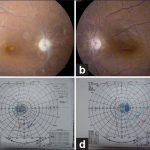 Visual field defect ethambutol