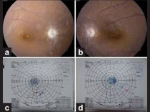 Ethambutol Induced Optic Neuropathy