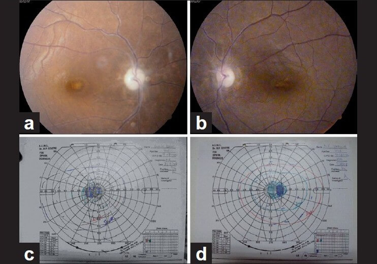 Visual field defect ethambutol