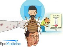 Medical Significance of Bedbugs