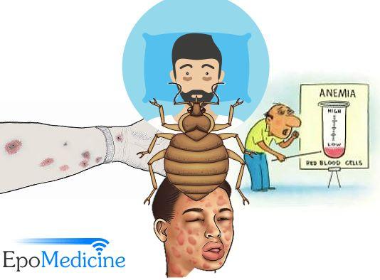 bedbug diseases