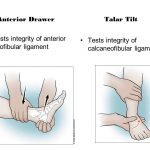 anterior drawer and talar tilt test