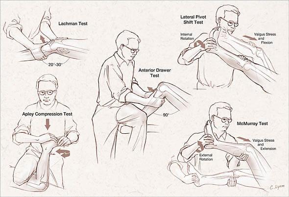 knee ligament examination