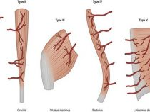 Mathes and Nahai Classification of Muscle Flap based on Vascular Anatomy