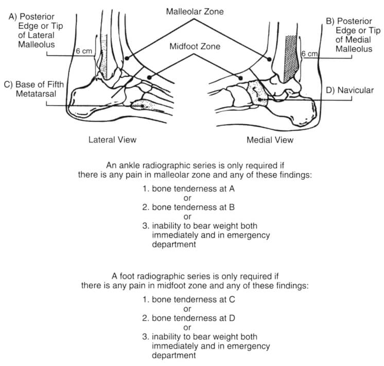otawa ankle and foot rules