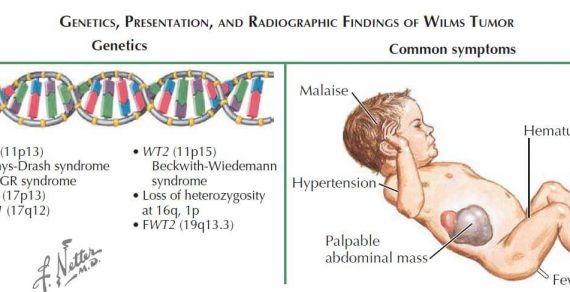 Wilm's Tumor (Nephroblastoma) : Quick review