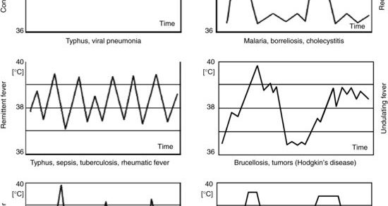 fever patterns