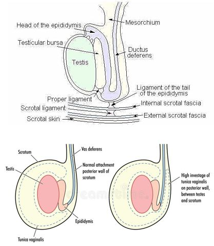 testicular torsion anatomy