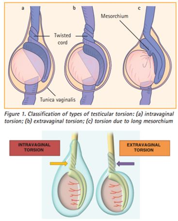 testicular torsion types