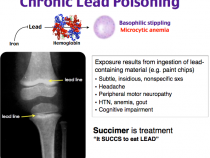 Chronic Lead Poisoning : Mnemonic