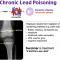 Chronic Lead Poisoning : Mnemonic