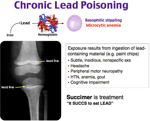 chronic lead poisoning