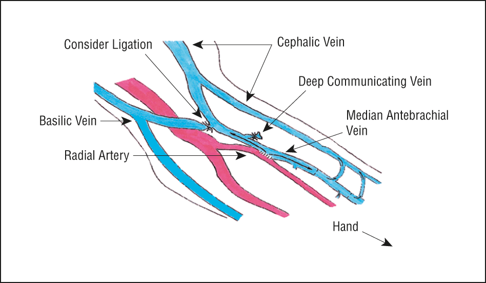 median antebrachial vein