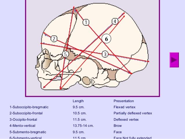 fetal skull AP