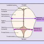 fetal skull transverse