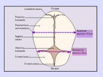 Fetal Skull Dimensions : Mnemonic