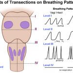 respiratory center lesion