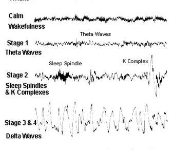 Sleep Stages and EEG : Mnemonic
